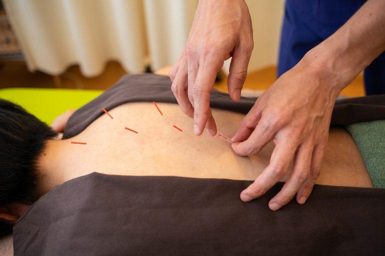 首の痛み|北上市の鍼灸治療